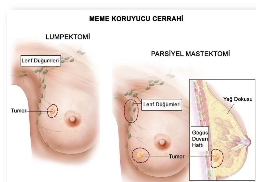 meme-kanseri